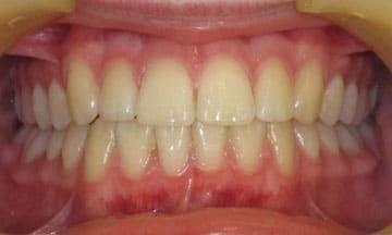 quick-straight-teeth-2
