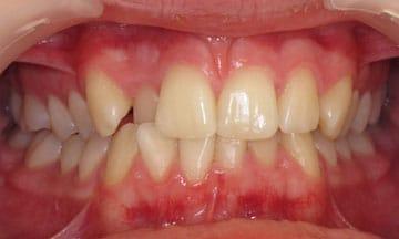 quick-straight-teeth